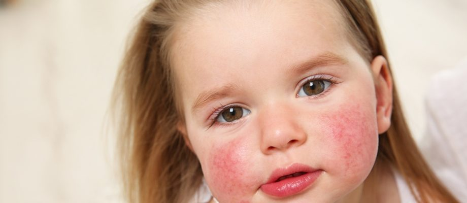 How to Recognise Food Allergies in Children
