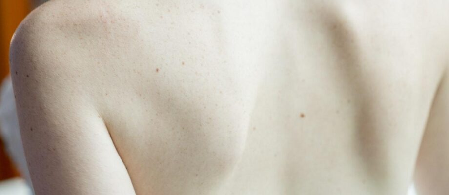 5 Ways Smoking Affects Your Skin